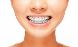 Lächeln: Zähne mit Klammern Stockfoto