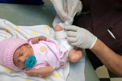 Le bébé nouveau-né soutenu avec un Clubfoot obtient une fonte mise dessus photo stock