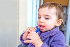 Le bébé que le baume à lèvres a gercé des lèvres a refroidi la dermatite criquée image libre de droits