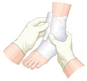 Le bandage sur le joint. illustration stock