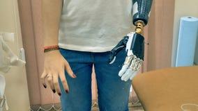 Le bras bionique s'est relié à une main de femme handicapée 4K