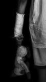 Le bras cassé du garçon dans la fonte avec la poupée Photographie stock