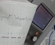 Le cardiographe montre la fréquence cardiaque foetale image libre de droits