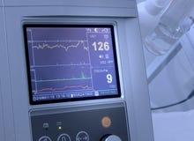 Le cardiographe montre la fréquence cardiaque foetale photo stock