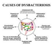 Le cause del dysbiosis negli intestini colon Flora patogena dei batteri Infographics Vettore royalty illustrazione gratis