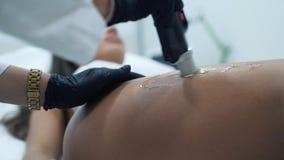 Le cosmetologist enlève des cheveux du corps du patient Un tir en gros plan des gants de port d'un docteur mène banque de vidéos