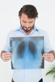 Le den hållande lungaröntgenstrålen för ung man royaltyfri fotografi