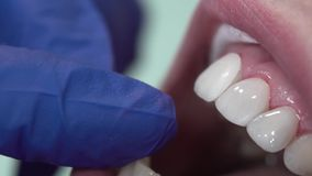 Le dentiste met les placages dentaires patients clips vidéos