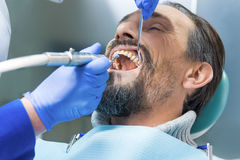 Le dentiste nettoie des dents images stock