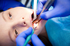 Le dentiste traite des dents Photo libre de droits