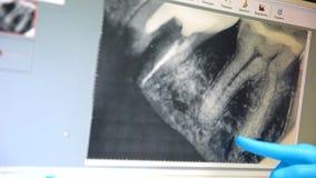 Le dentiste traite des dents clips vidéos