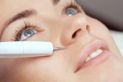 Le docteur-cosmetologist fait le traitement de procédure de Couperose de la peau faciale d'un beau, jeune femme photo stock