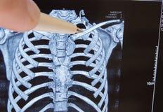 Le docteur précise le stylo sur la clavicule dans la photo de la tomographie d'ordinateur 3D Emplacement anatomique de clavicule  Images libres de droits