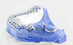 Le fil dentaire se pliant pour font un dentier partiel image stock