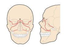 Le Fort skull fractures. Drawing of horizontal, pyramidal and transverse Le Fort fractures of the skull Royalty Free Stock Photos