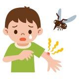Le garçon a été poignardé dans le moustique Photographie stock libre de droits