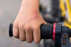 Le garçon, étant tombé d'une bicyclette, a été blessé photo libre de droits
