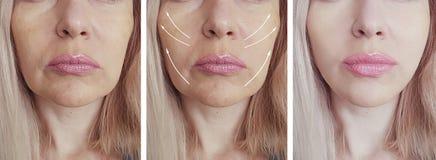 Le grinze della donna affrontano l'ascensore della freccia dell'estetista prima e dopo il trattamento paziente di correzione di d immagine stock libera da diritti