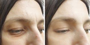 Le grinze della donna affrontano prima dopo il trattamento di effetto del collage che stringe le procedure fotografia stock libera da diritti