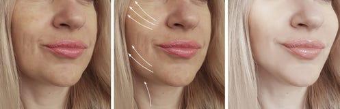 Le grinze della donna affrontano prima e dopo il collage del trattamento di correzione immagine stock