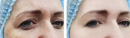 Le grinze della donna affrontano prima e dopo la differenza dei trattamenti immagini stock libere da diritti