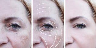Le grinze della donna effettuano la differenza prima e dopo le procedure, la freccia, la pigmentazione del trattamento di correzi fotografia stock libera da diritti