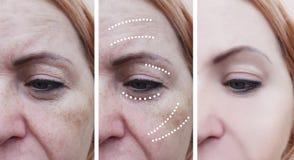 Le grinze della donna prima e dopo il sollevamento delle procedure mature del trattamento sollevano i trattamenti di effetto di c immagini stock