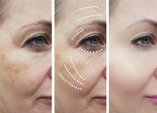 Le grinze della donna prima e dopo le procedure mature di sollevamento del trattamento del collage sollevano i trattamenti di eff fotografia stock libera da diritti
