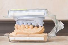 Le gypse dentaire de bâti modèle le plâtre image libre de droits