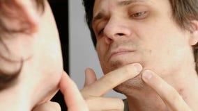 Le jeune homme serre le bouton sur le visage devant le miroir Visage du ` s d'homme de plan rapproché avec des problèmes de peau banque de vidéos