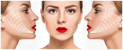 Le jeune visage femelle Concept de levage anti-vieillissement et de fil photos stock