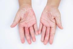 Le mani asciutte, buccia, dermatite da contatto, micosi, pelle inf fotografie stock libere da diritti