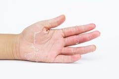 Le mani asciutte, buccia, dermatite da contatto, micosi, pelle inf fotografia stock