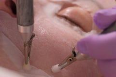 Le mani di un cosmetologo in guanti rosa lisciano fuori le grinze con gli elettrodi Procedura dell'apparecchiatura di cosmetologi immagine stock libera da diritti
