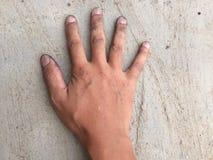 Le mani sporche fanno fare i germi il malato fotografia stock libera da diritti