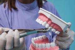 Le modèle dentaire est employé à la démonstration de l'extraction de dent par des médecins photos libres de droits