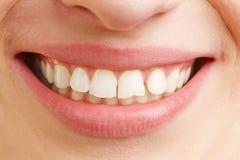 Le munnen med vita tänder arkivfoto
