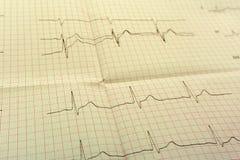 Le papier d'EGGor ECG l'ECG est le résultat du test de tension et de la forme rose de coeur hors des pilules Le paquet de promoti Photos stock
