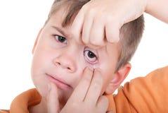 Le petit garçon affiche un oeil Photographie stock libre de droits