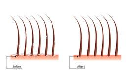 Le problème des cheveux de pellicules avant et après la procédure Résultat des pellicules de traitement Photographie stock libre de droits