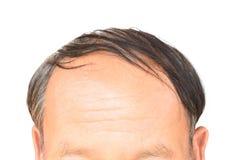 Le problème sérieux de perte des cheveux de vieil homme pour le shampooing de soins de santé et soit photos libres de droits