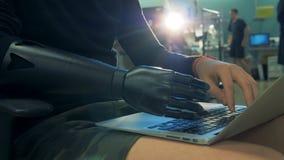 Le processus de dactylographie a exécuté par une personne avec une main prosthétique banque de vidéos
