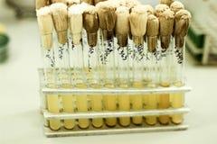 Le provette sono nel treppiede, le fiale gialle, il lavoro in un laboratorio medico, provette in scaffali, exa del laboratorio Immagine Stock