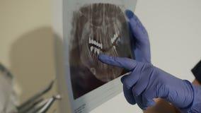 Le rayon X des dents dans les mains du dentiste de dentistFemale montre à un ` s de jeune homme la dent malade sur une radiograph banque de vidéos