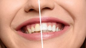 Le tänder för kvinna före och efter arkivfoto