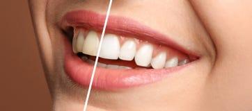 Le tänder för kvinna som före och efter gör vit tillvägagångssätt royaltyfri bild