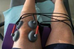 Le tazze di aspirazione si sono applicate ad un ginocchio in fisioterapia Immagini Stock Libere da Diritti