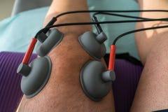 Le tazze di aspirazione si sono applicate ad un ginocchio in fisioterapia Fotografia Stock Libera da Diritti