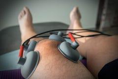 Le tazze di aspirazione si sono applicate ad un ginocchio in fisioterapia Fotografia Stock