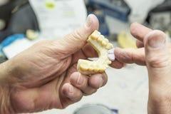 Le technicien Working On 3D a imprimé le moule pour les implants dentaires Photo stock
